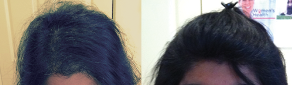 hair-loss-solution-before-and-after