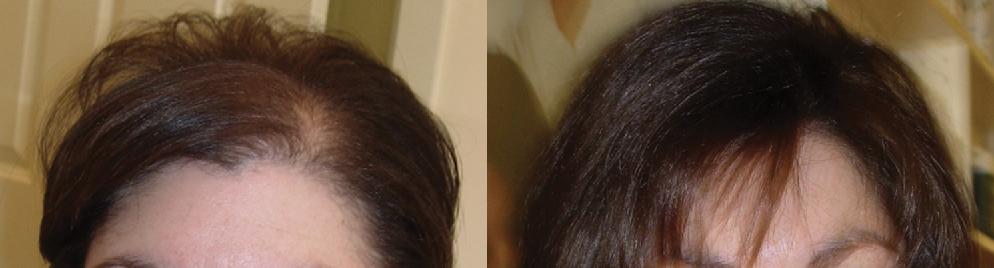 hair loss solution for women
