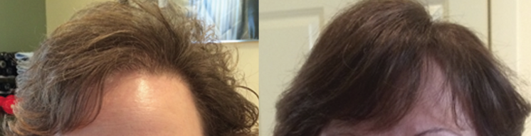 natural-hair-loss-solution-before-and-after