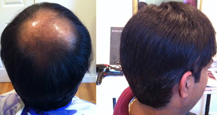 Hair Replacement Systems For Men