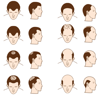 the effects of male pattern baldness