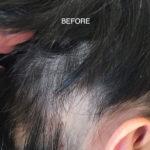 alopecia solution boston